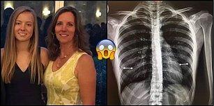 Vay Başına Gelenler! Kızının Meme Ucu Piercingi Olduğunu Röntgen Çekilirken Anlayan Anne
