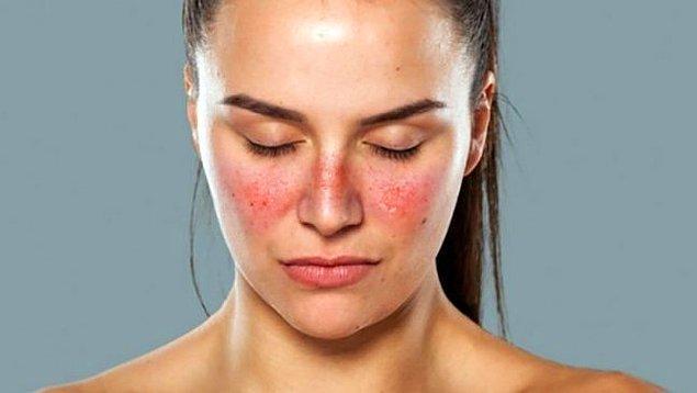 Peki Lupus hastalığı nedir?