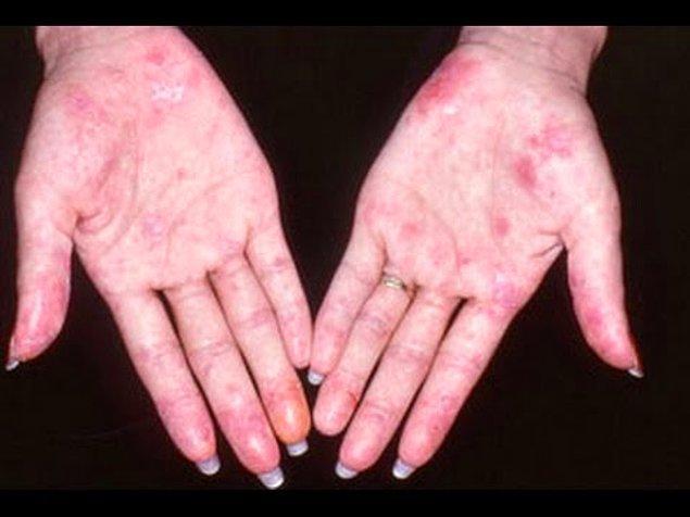 Lupus(SLE) hastalığının belirtileri nelerdir?