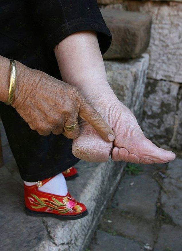 9. Fotoğraftaki ayak ise Çin'de güzelliğin bir simgesi...