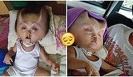'Şeytana' Benzetilen Hidranensefali Hastası 22 Aylık Bebeğin Yürek Burkan Hikayesi