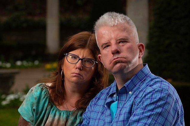 45 yaşındaki Alex Barker ve 38 yaşındaki Erin Smith, Moebius sendromuyla doğmuşlar.