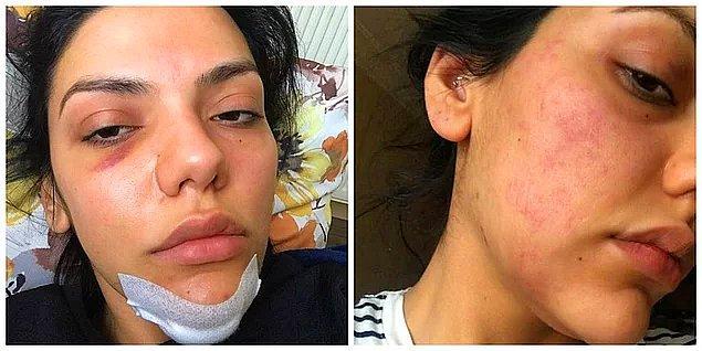 5. Kadına şiddet her yerde - Sunucu Eda Pera Küçük 'ün oyuncu Tolga Pancaroğlu'ndan şiddet gördüğü iddiası