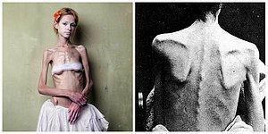 İnsanları Bir Deri Bir Kemik Bırakan Psikolojik Bozukluk: Anoreksiya Nervoza