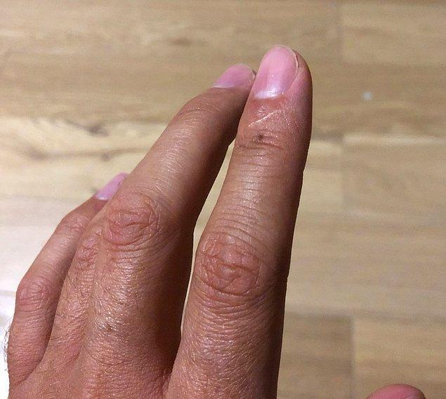 1. İşaret parmağınızda yara izi var mı?