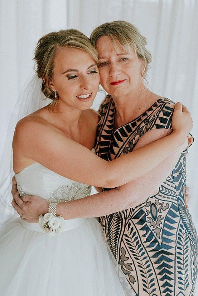 Fotoğrafta gördüğünüz ise Agnew ve annesi. İkisi de kondrodistrofi adı verilen durumla karşıkarşıyalar.