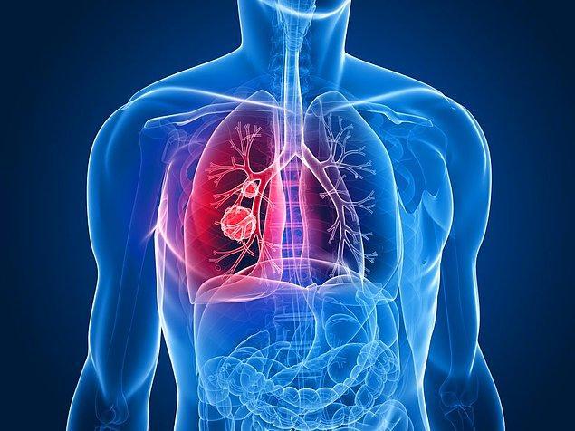 12. Solunum sorunlarını tedavi edebilir.