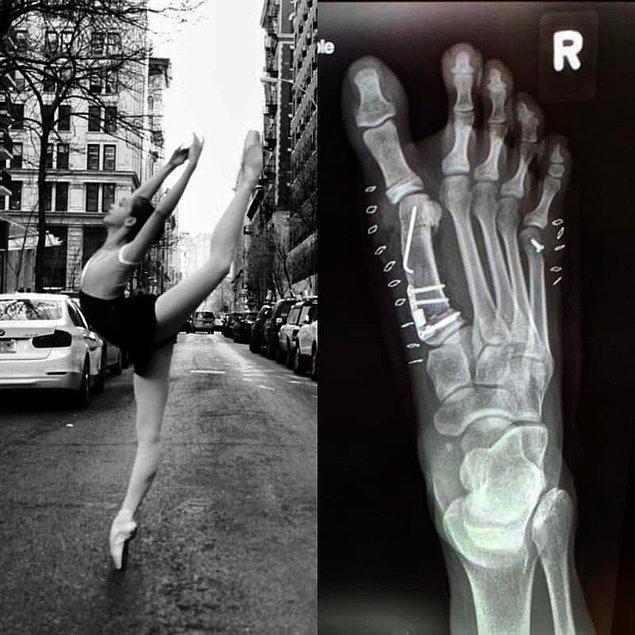14. Ve bazen de bu kazalar ameliyatla sonuçlanabilir.