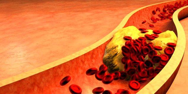 Son olarak, genel bir özet ile kolesterol, her ne kadar ileri yaşlarda sorun yaratmaya başlasa da sorun aslında erken yaşlarda başlar. Bu sebeple erken yaşlarda düzenli beslenme ve egzersiz alışkanlıkları oturtulmalıdır, aksi taktirde tedavi için çok geç kalınabilir.