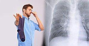 Her Gün Kirli Çoraplarını Kokladığı İçin Akciğerlerinde Mantar Enfeksiyonu Oluşan Adam