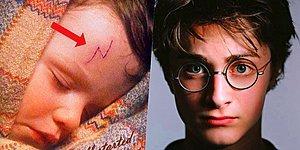 Bu Gerçek Harry Potter Hayranlarını Şaşırtacak! Harry'nin Alnındaki İzin Aslında Ne Olduğunu Biliyor musunuz?