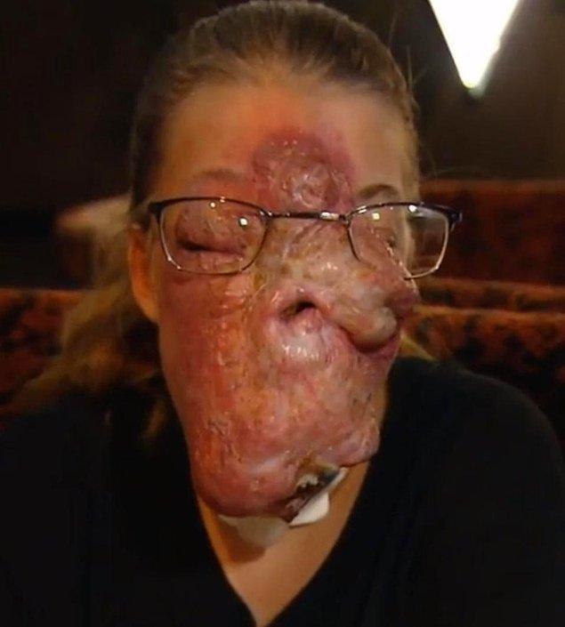 Bütün yüzü devasa tümör ile kaplı olan cesur genç, ne olursa olsun sevdiği şeyleri yapmaktan vazgeçmediğini söylüyor.