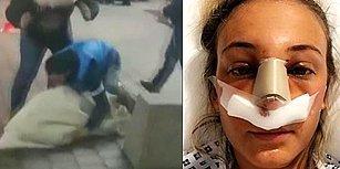 Evleneceği Kadına Arkadaşlarıyla 'Kız Kaçırma' Şakası Yaparken, Kadının Burnunu Kıran Damat!