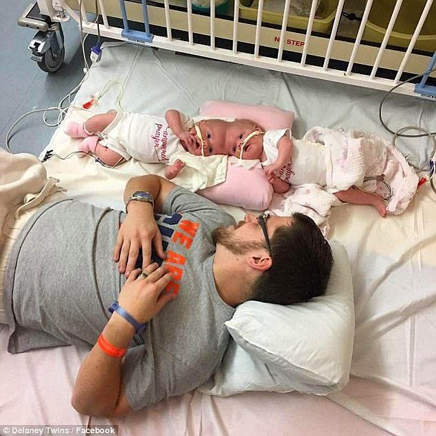 Abby de aynı gün, kardeşinden yalnızca birkaç saat sonra komadan çıkmıştı.