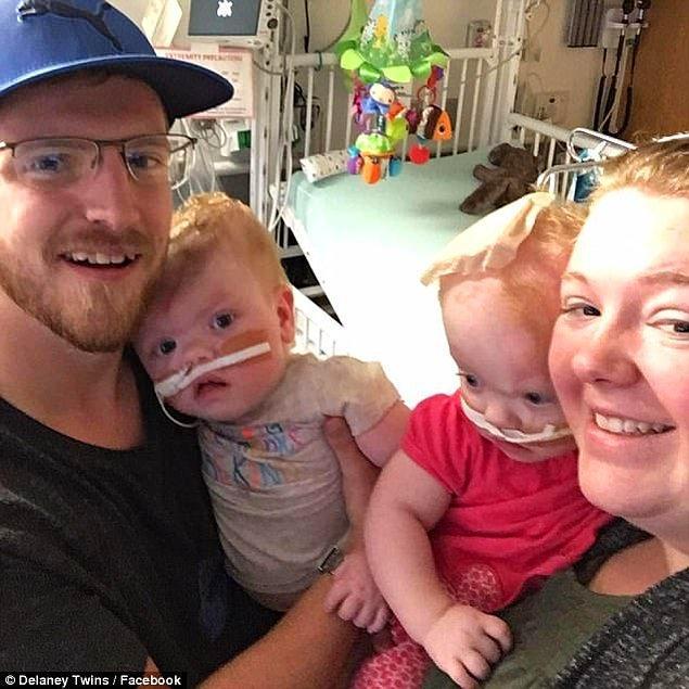 Gerçekleşen 11 saatlik ameliyatın bir buçuk yıl sonrasında, şimdi evlerinde sağlıklı bir şekilde hayatlarına devam ediyorlar.