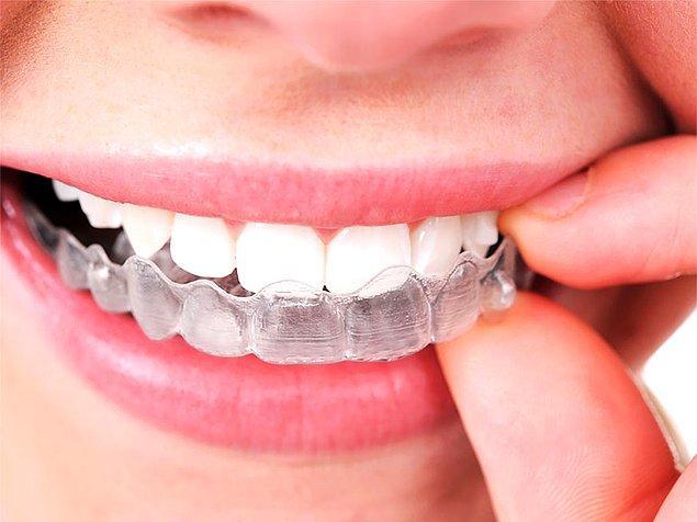 Şeffaf plak, tel takmak istemeyen ve sadece dişlerindeki çapraşıklıkların düzeltilmesini isteyen hastalara öneriliyor.