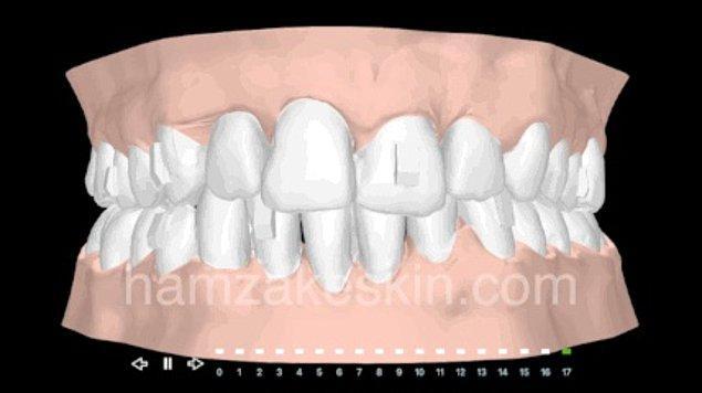 Şeffaf plak tedavisinde önce ağız içi muayene ve sonrasında hastanın tedaviye uygunsa ağız içinden ölçü alınarak dişlerin dijital ortama aktarılması gerekiyor.