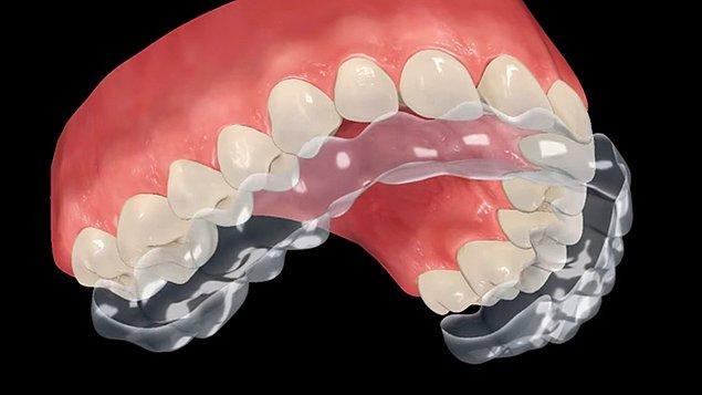 Şeffaf plak tedavisi, iskeletsel olarak problemi olmayan ve dişlerindeki çapraşıklık miktarı aşırı fazla olmayan hastaların % 80, %90'ına uygulanabilir.