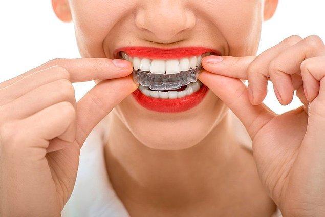 Her kullanımdan önce şeffaf plak, yumuşak kıllı diş fırçası ve az miktarda diş macunu ile fırçalanmalıdır. Şeffaf plak temizleme işlemi her plak için 1'er dakika olarak ayarlanmalıdır.