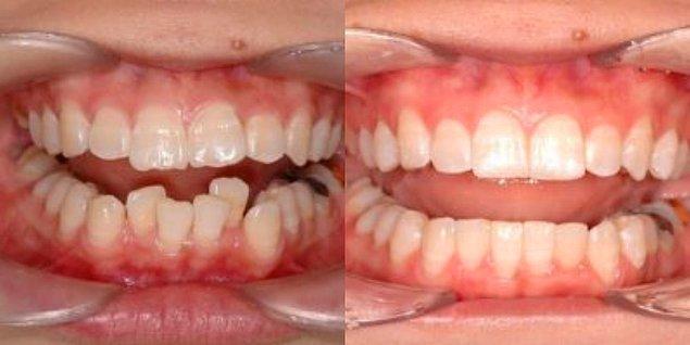 11-12 ay süren şeffaf plak tedavisi de öncesi ve sonrası ile aşağıdaki gibi oluyor.