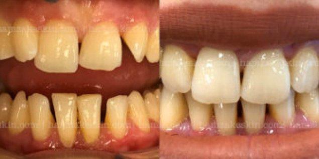 8-9 ay süren şeffaf plak tedavisi öncesi ve sonrası ise şu şekildedir;