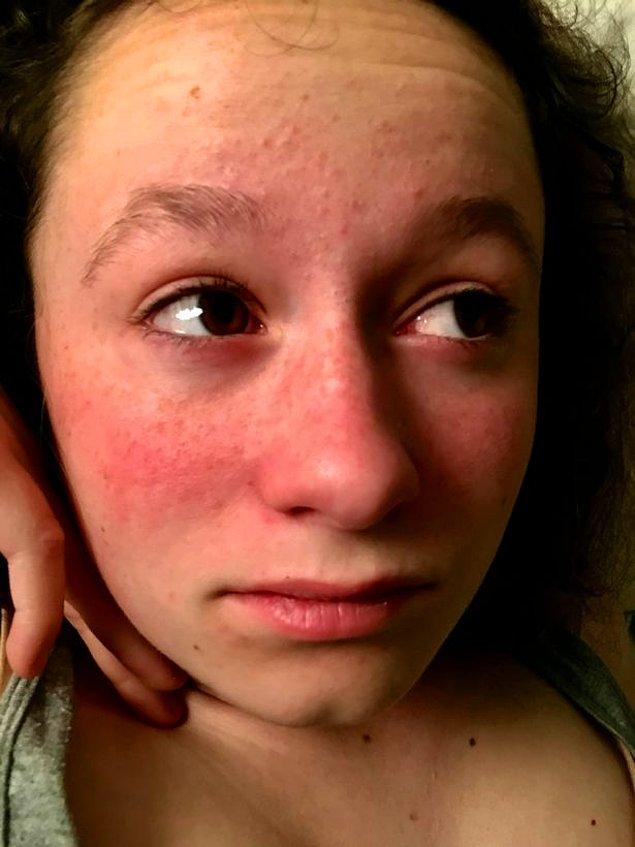 Martina'nın alerjisini evin içindeki aşırı sıcak bile tetikleyebiliyor, bu yüzden genellikle soğuk bir ortamda oturmak zorunda.