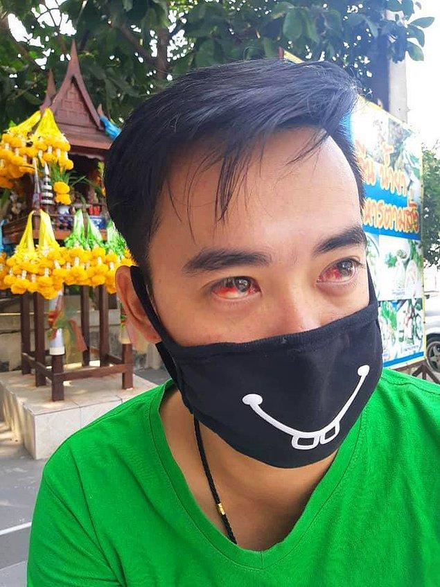 İnsanlara yüz maskeleri takmalarını söyleyen yetkililer ise bu durum için hiçbir şey yapamıyor.