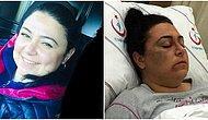3 Kadına Saldırıp Hastanelik Etmişti: 'Başkasıyla Karıştırdım' Dedi ve Serbest Bırakıldı