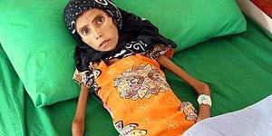 Bu Acıtan Kare Dünyanın Kör ve Sağır Kaldığı Yemen'den: 10 Kilo Ağırlığındaki Çocuk Tedavi Altına Alındı