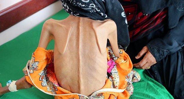 Fatima ve 10 kardeşi, Yemen'deki savaşın şiddetlenmesi üzerine evlerini terk etmek zorunda kalmış