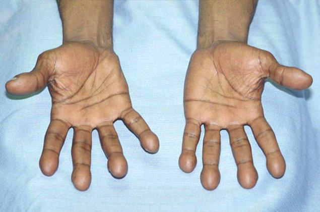 4. Büyüyen parmak uçları: Solunum yolları rahatsızlığı.