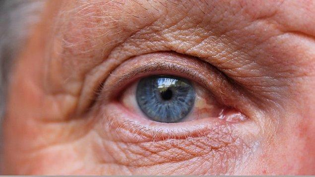 Kalp ve damar sağlığınızı ihmal etmeyin: kolesterol ve kalp rahatsızlıkları göz sağlığını direkt olarak etkiler.