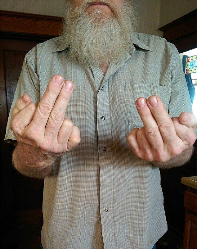 """3. """"Babamın her iki elinde de altı parmağı var. Birine hareket çekerken iki parmağını birden kullanıyor."""""""