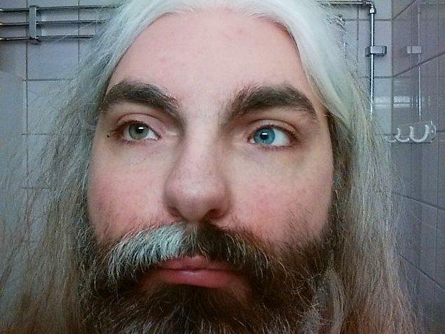 """4. """"Sahip olduğun Waardenburg Sendromu sebebiyle bir kulağım duymuyor, saçlarım beyazlıyor ve gözlerim de farklı renkte."""""""