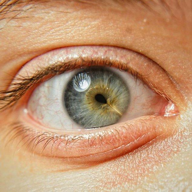 """7. """"Gözümde bir izle doğmuşum."""""""
