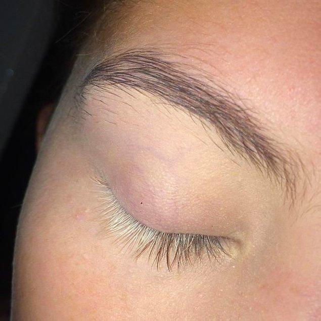 """13. """"Sağ gözümdeki kirpiklerimin yarısı beyaz renkte."""""""