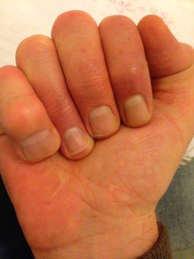"""15. """"Küçük parmağım, benim en büyük parmağım."""""""