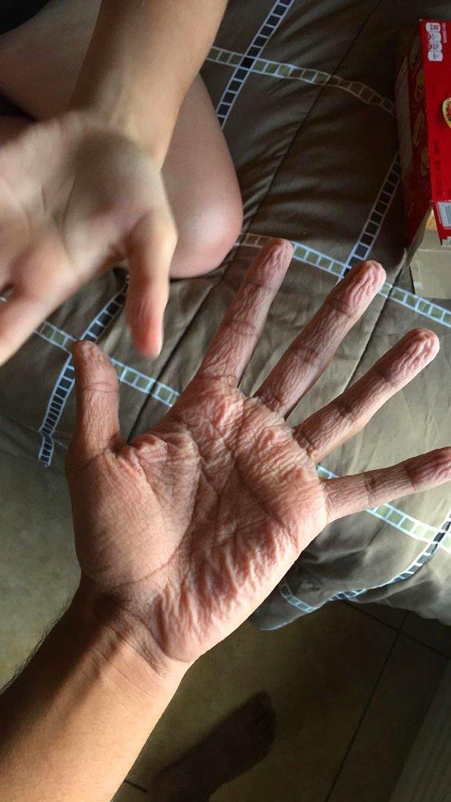 """19. """"Anormal bir şekilde buruşuk parmaklar mı? Ne zaman birileriyle yüzmeye gitsem ellerim herkesinkinden on kat fazla buruşuyor."""""""