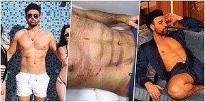 Yaza Doğru Talep Artıyor! Türkiye'nin Dan Bilzerian'ı Taha Özer ile Yeniden Gündeme Gelen 'Karın Kası' Ameliyatı