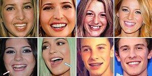 Ünlülerin Diş Evrimi Güzel Bir Gülüşün Ne Kadar Önemli Olduğunu Gözler Önüne Seriyor