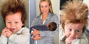 Yele Gibi Saçlarıyla Herkesi Şoka Uğratan Instagram Fenomeni, Sevimlilik Abidesi 4 Aylık Bebek