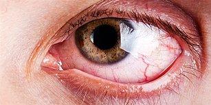 Gözümüz Neden Çapaklanır Hiç Merak Ettiniz mi?