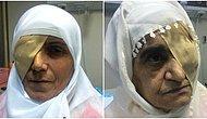 Kör Eden Katarakt Ameliyatları Sonrası Üç Kadın, Sağlık Bakanlığı'na 570 Bin TL'lik Dava Açtı