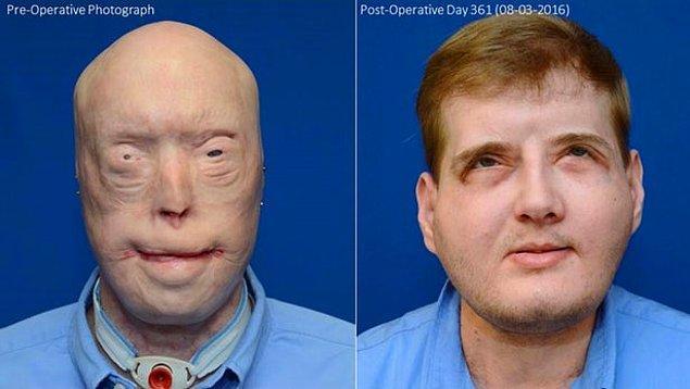11. Önemli kazalar sonucu yüzlerini kaybeden insanlar için en karmaşık yüz nakli başarıyla uygulandı. Gelecek uygulamalar için devrim niteliğinde.
