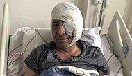 Gazeteci Demirağ'a Sopayla Saldıran 6 Kişi, 'Hayati Tehlike Bulunmadığı' Gerekçesiyle Serbest Bırakıldı
