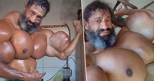 Valdir Segato gençken uyuşturucu bağımlısıydı ve çok fazla kilo vermişti. Bağımlılığından kurtulmayı başardı ve spor salonuna gitti.