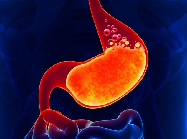 1. Gastroözofageal reflü hastalığı
