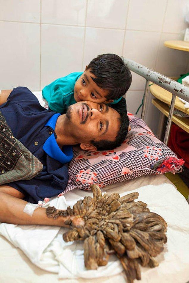 Bir çocuk babası olan Bajandar'da görülen bu hastalığın ismi epidermodysplasia verruciformis.