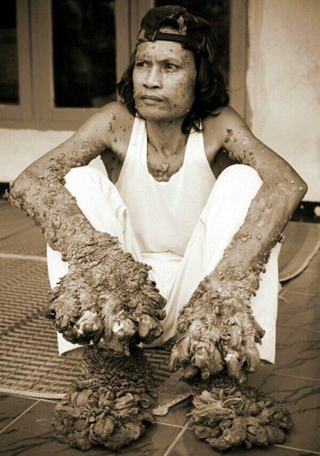 Hastalığın en yoğun görüldüğü kişi ise Dede Koswara idi.