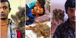 Bangladeşli 'Ağaç Adam' Çektiği Acılara Daha Fazla Katlanamadığı İçin Ellerinin Kesilmesini İstiyor